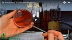Ученые обнаружили, что кровь веганов в 8 раз эффективнее противостоит раковым клеткам